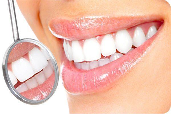 Галка рекомендує: чи варто вибілювати зуби