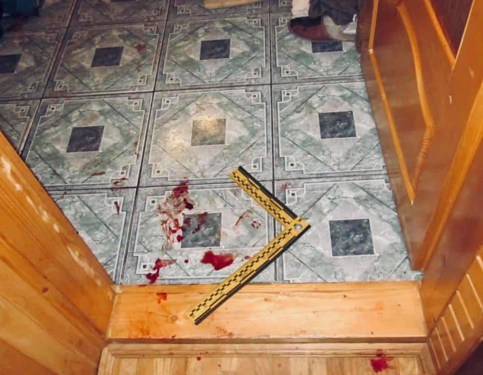 На Прикарпатті п'яна жінка порізала чоловіка (ФОТО)