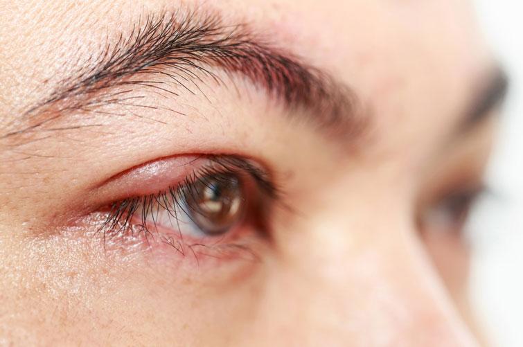 Галка рекомендує: як позбутися ячменю на оці