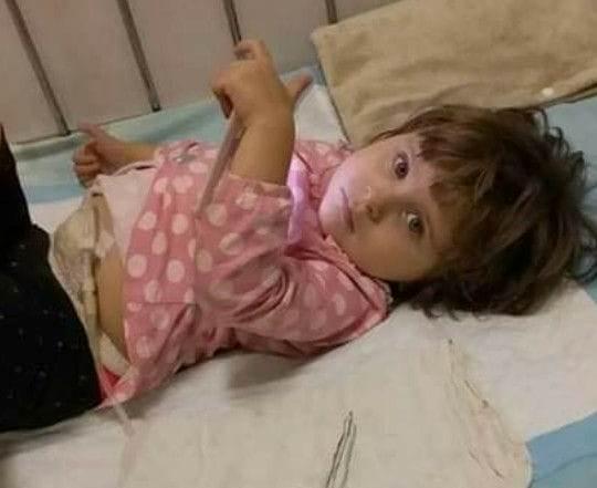 Маленька дівчинка з Богородчанщини потребує коштів на трансплантацію