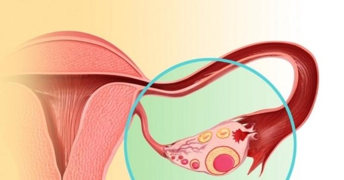 Причини, симптоми, діагностика та лікування непрохідності маткових труб