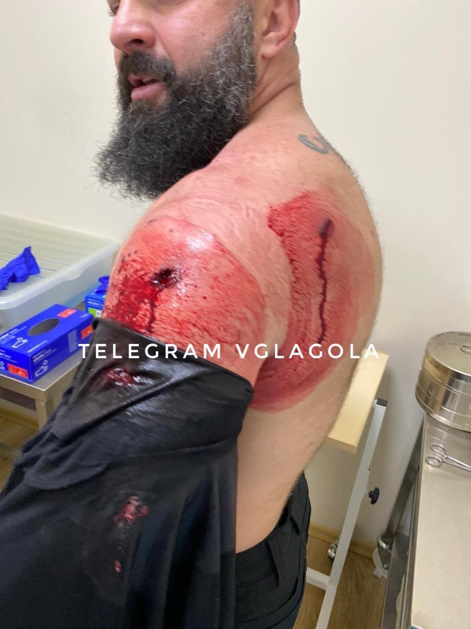 Стрілянина у Мукачеві: поранено помічника скандального екснардепа та його охоронця (ВІДЕО, ФОТО)
