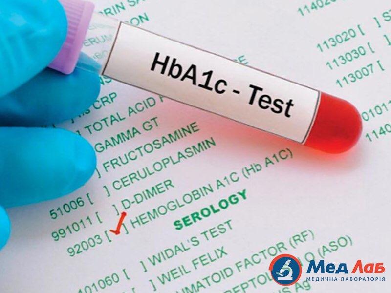 Глікозильований гемоглобін і діабет – прямий зв'язок. Де здати аналізи?