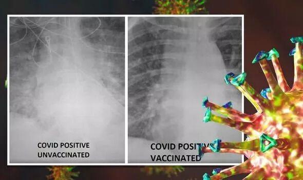 У США медики порівняли легені щепленого і нещепленого COVID-хворих